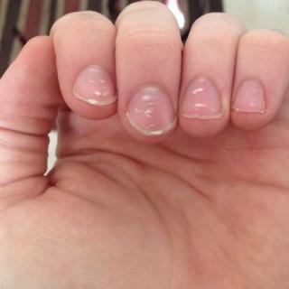 Manchas blancas en las uñas ~ que son y como tratarlas