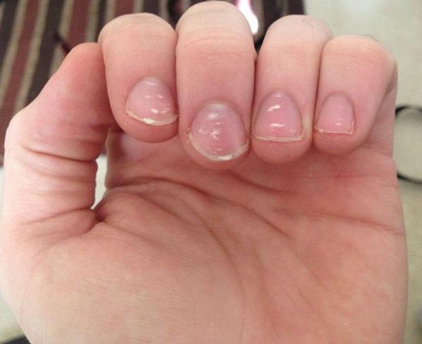uñas con manchas blancas